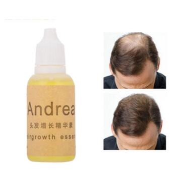 Hot Fast Sunburst Andrea Fast Hair Growth Pilatory Essence Human Hair Oil Baldness Anti Hair Loss Invalid Refund Alopecia in Hair Loss Products from Beauty Health