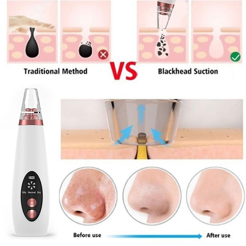 Poriënreiniger mee-eterverwijderaar vacuüm gezicht huidverzorging - Huidverzorgingstools - Foto 3