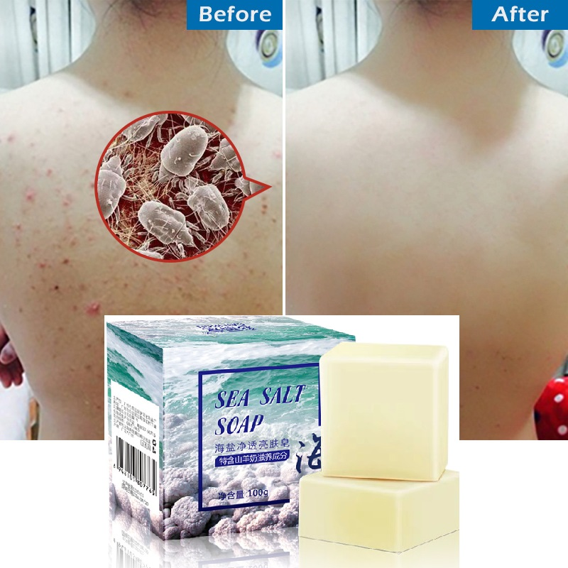 100g Removal Pimple Pores Acne Treatment Sea Salt Soap Cleaner Goat Milk Moisturizing Face Care Wash Basis For Skin Care TSLM1