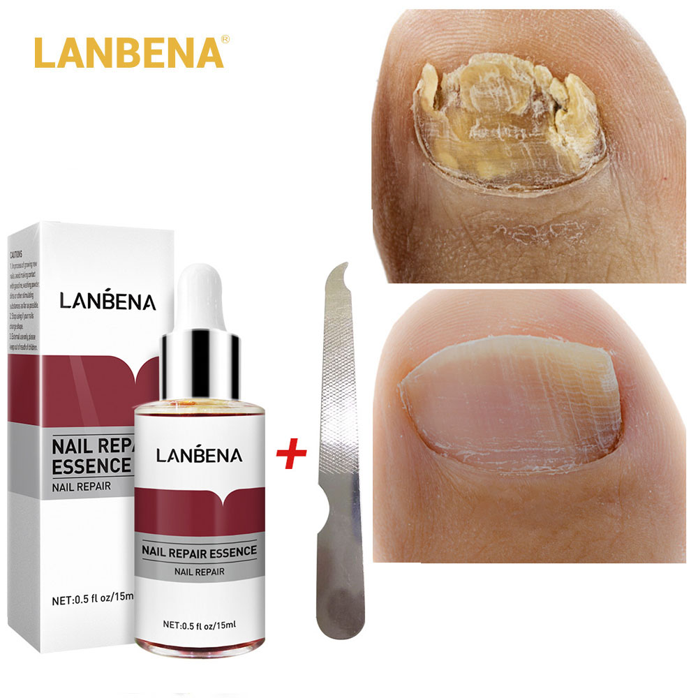 LANBENA Fungal Nail Treatment Essence Toe Care Repair Serum Foot Nail Fungus Removal Gel Anti Infection Paronychia Onychomycosis