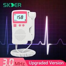 Doppler – moniteur sonore fœtal pour femmes, foetaux moniteurs moniteur de rythme cardiaque, Sonar pour femmes enceintes, détecteur de grossesse, sonde 3.0MHz, détection des radiations