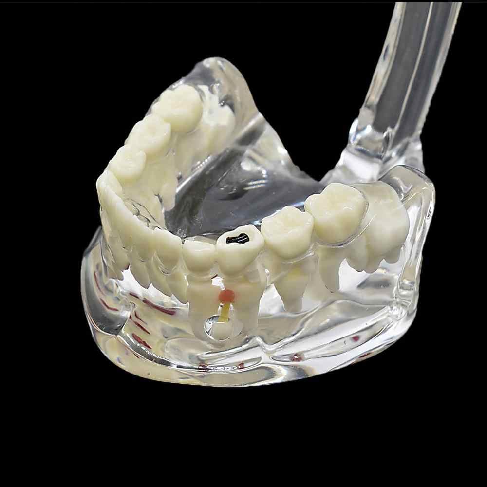 Dentystyczne dzieci patologiczny Model zębów dentysta ortodontyczny Model higiena jamy ustnej demonstracja badanie zębów nauczanie pokazujące