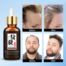 Hair Loss Products for Fast Hair Growth