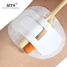 10 teile/los nicht woven adhesive halter foley katheter halter homecare feste stick katheter pflege sterilisiert befestigt rohr size11 * 6cm