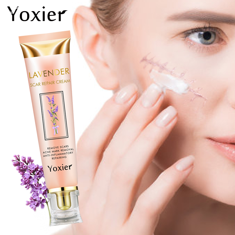 Yoxier Estrias Cicatriz de Acne Tratamento da Acne Cravo Removedor de Manchas de Creme de Reparação Acne Creme Para o Rosto Creme de Clareamento Da Pele Cuidados