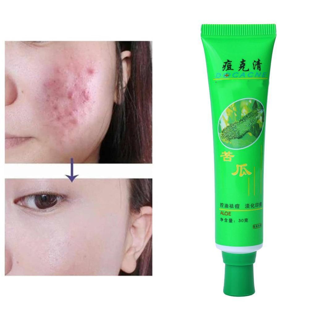 Face Skin Care Acne Cream Oil Control Acne Products Moisturizing Cream Face Acne Face Beauty Aloe Skin Remove Vera Care Cre K3G0