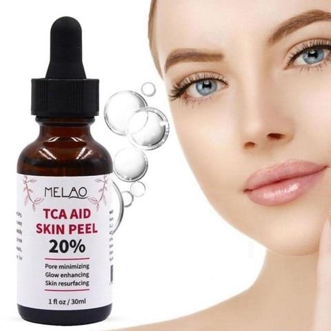 Tca Aid Skin Peel Face Serum Trichloroaectic Acid 20% Skin Peel Pore Minizing Wrinkles Spots Skin Care Face Serum 30ml Multan