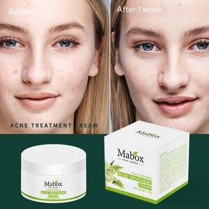 Image 2 - MABOX 20g Acne Treatment Blackhead Remova Anti Acne Cream Oil Control Shrink Pores Acne Scar Remove Face Care Whitening