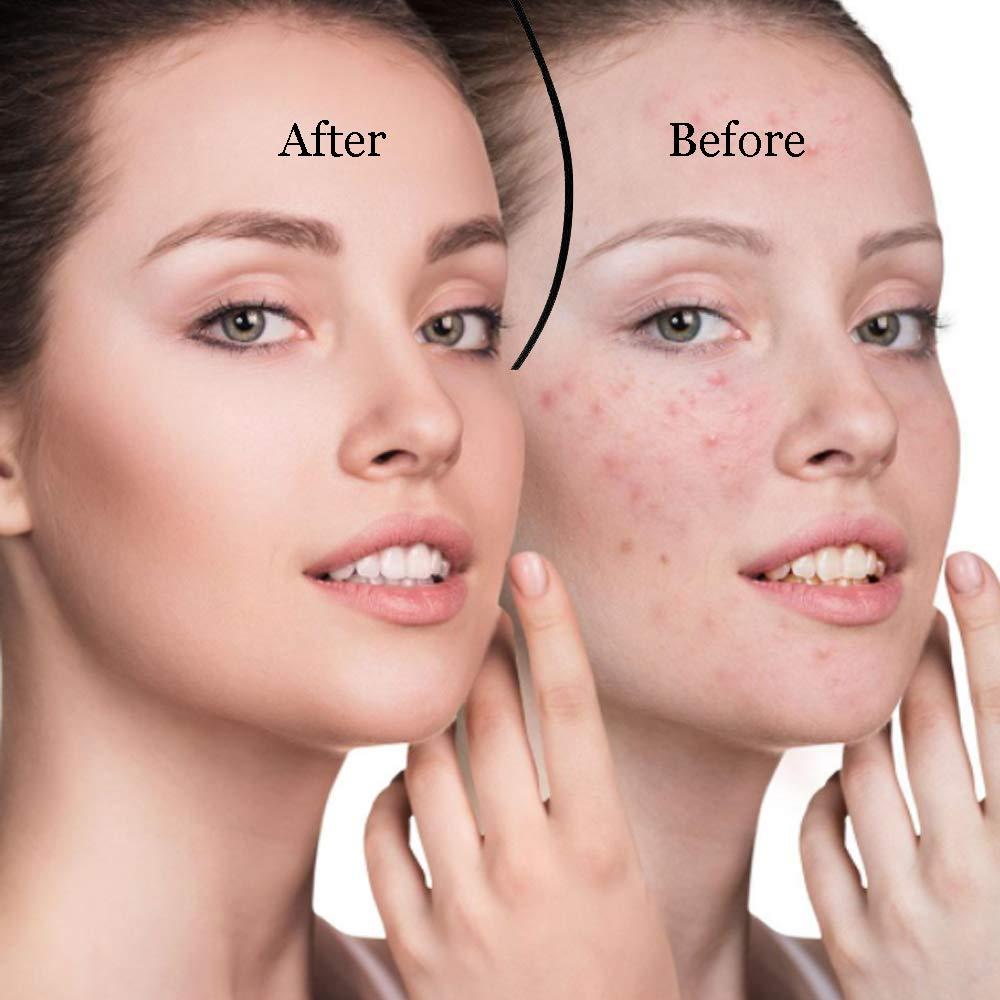 Poriënreiniger mee-eterverwijderaar vacuüm gezicht huidverzorging - Huidverzorgingstools - Foto 6