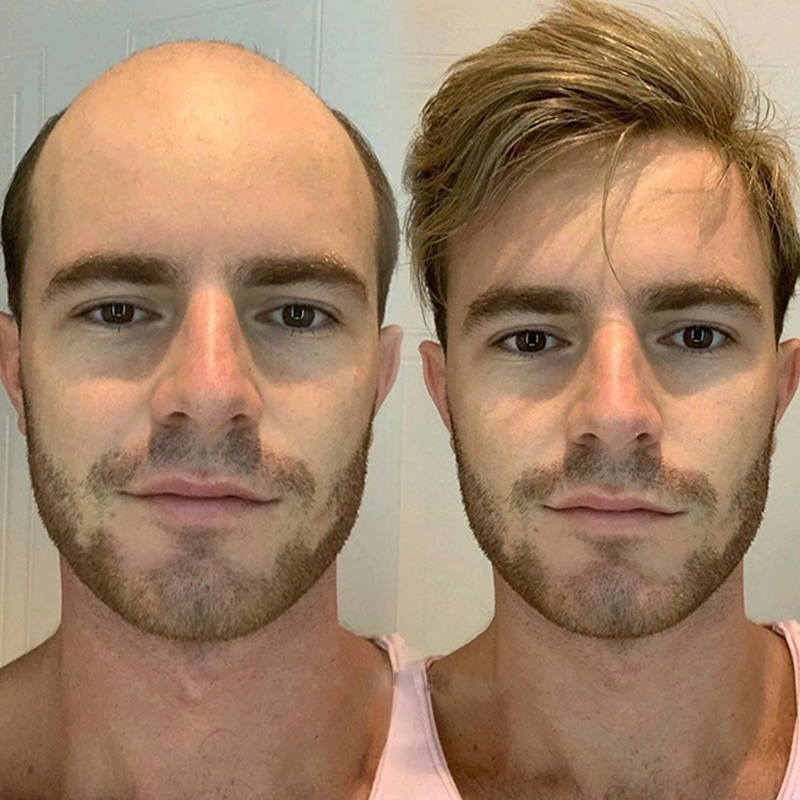 """Men Toupee 8X10"""" Swiss Lace With Thin Skin All Around Male Hair Replacement System Silk Base 440# Repacement Hair Dolago Hair"""