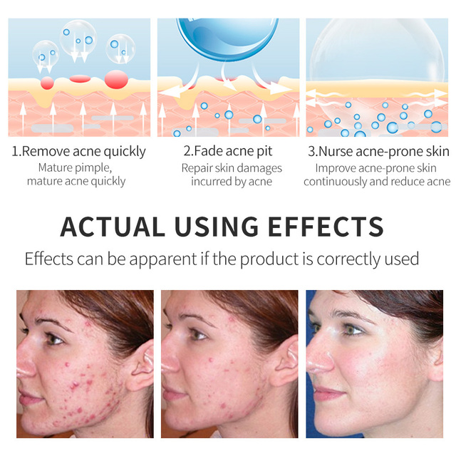 BREYLEE Acne Treatment Face Serum Facial Essence  Removal Scar Cream Anti Acne Pimple Whitening Remover Acne Skin Care 40ml