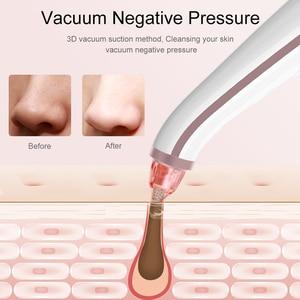 Image 5 - ANLAN eliminador de espinillas inalámbrico, limpiador de poros profundos por succión al vacío, herramienta de belleza para el cuidado Facial