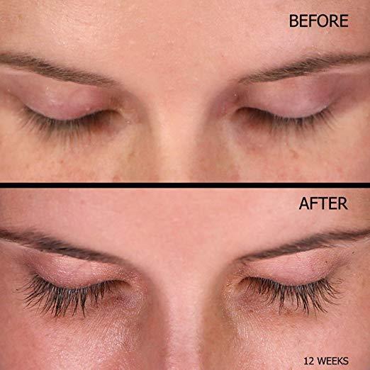 New Professional Eyelash Growth Enhancer 0.18FL OZ/5.32ml Dabalash Eye Lash Enhancer  Stimulates & Lengthens Lashes