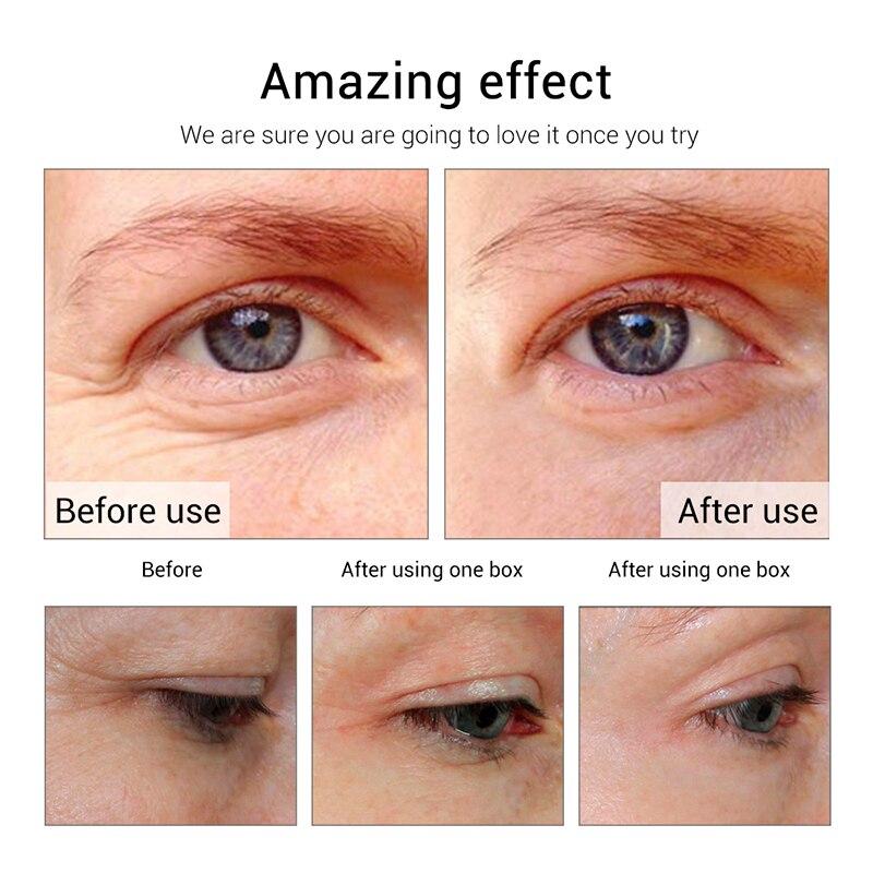 Fonce-Eye-Cream-Anti-wrinkle-Cream-Firming-Eye-Mask-Remove-Dark-Circles-treatment-Anti-Puffiness-Moisture