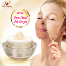 Meiyanqiong Strong effect whitening cream 30g Removal Freckle melasma pigment Me
