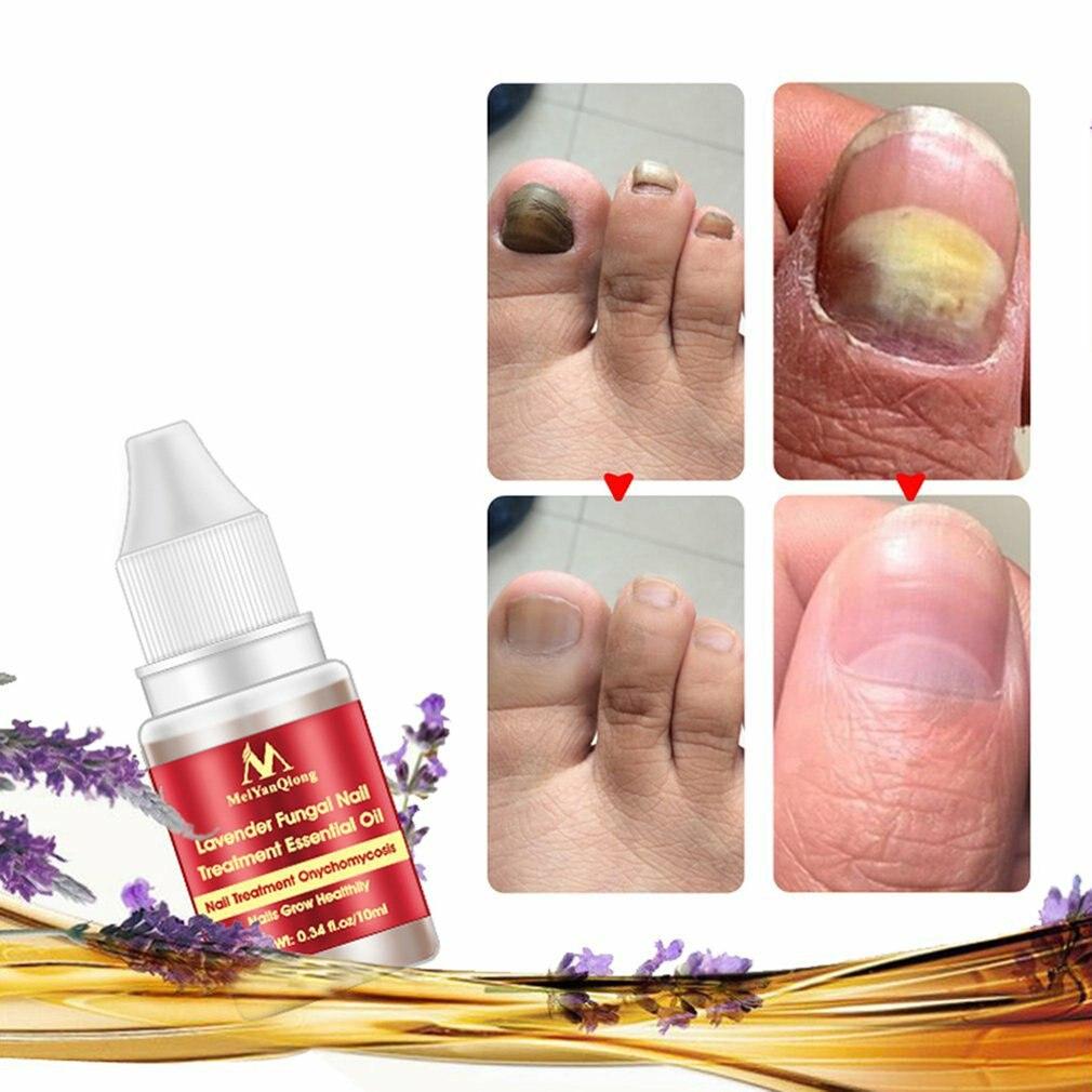 Kill Bacteria And Fungus Nail Fungus Treatment Cream Onychomycosis Paronychia Anti Fungal Nail Infection Nail Polish Aliexpress