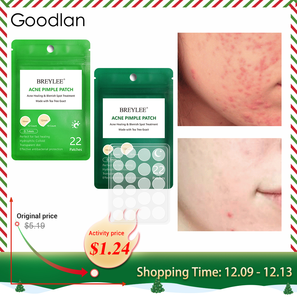 BREYLEE Acne Remover Patch Anti Acne Blackhead Pimple Blemish Treatment Sticker Skin Care Mask Facial Tools 22 Patches