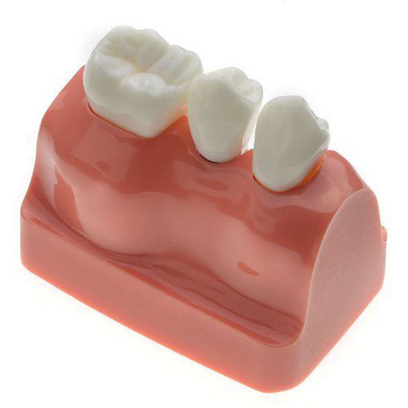 Image 4 - Dental Demonstration Teeth Model Implant Analysis Crown Bridge-in Teeth Whitening from Beauty & Health