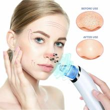 Vacuum Blackhead Remover and Pore Cleaner Electric Face Deep Cleansing Skin Care Machine Facial Tools new hots facial pore blackhead vacuum suction machine blackhead remover peeling facial pore cleansing face skin deeply cleaner