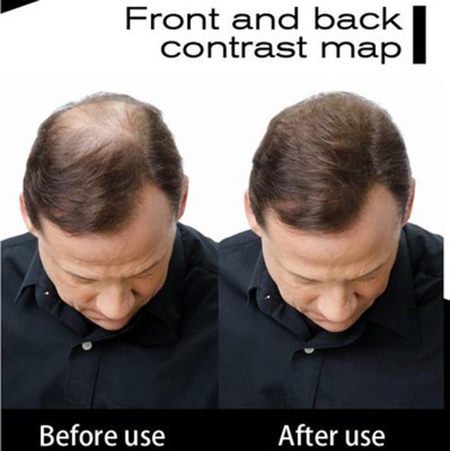 0.42oz 12g Toppik Keratin Hair Building Holding Fibers Hair Full Hair Loss Products Hair Care treatment Instant Wig Regrowth 3