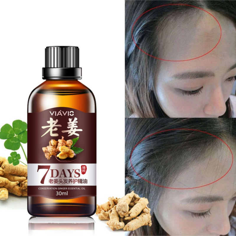 7 Days Ginger Essence Hairdressing Hair Care Oil Hairs Mask Essential Oil Dry & Damaged Hairs Nutrition 30ml