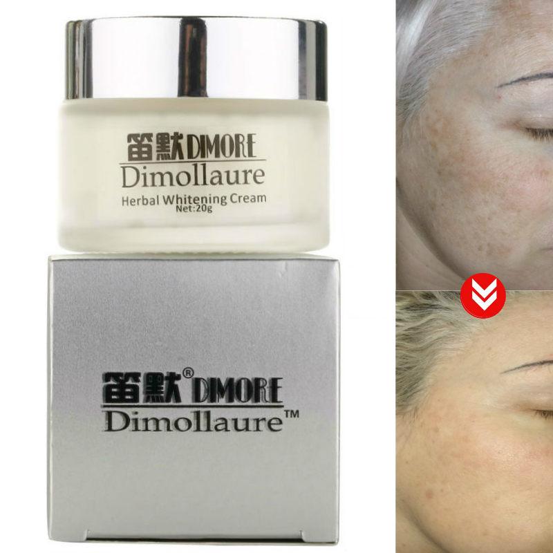 Dimollaure Strong Whitening Freckle Cream Removal Melasma Acne Scar Pigment Melanin Sun Spots Dimore Face Care