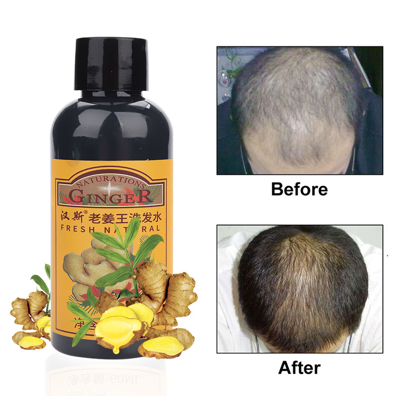 Hair Care Hair Growth Essential Oils Essence Ginger Anti Hair Loss Liquid Health Care Beauty Dense Hair Growth Serum 60ml