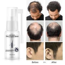 Hair Growth Spray Essential Oil Liquid Ginger Anti Hair Loss For Men Women Dry H