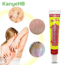 1pcs Psoriasis Ointment Feet Rotten Peeling Itching Blisters Foot Corn Cream Pain Relief Natural Herbal Medical Plaster S009 catei karrui 2020 new women s swimsuit top top waist split swimsuit sexy bikini beach pool party essential