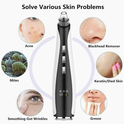 eletrica facial poro ponto limpador removedor de