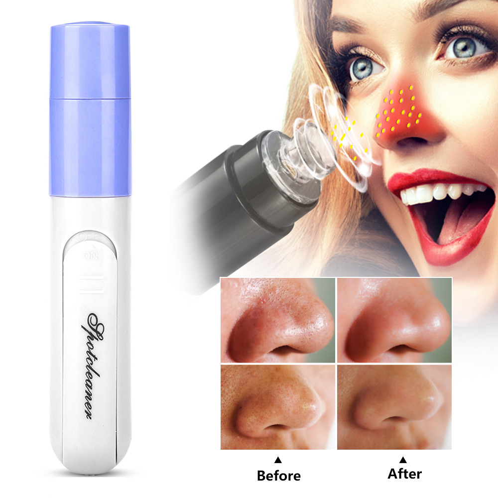 Acne Blackhead Remover Electric Face Massage Cleaner Blackhead Vacuum Apparatus Deep Face Clean Pore Vacuum Black Head Removal