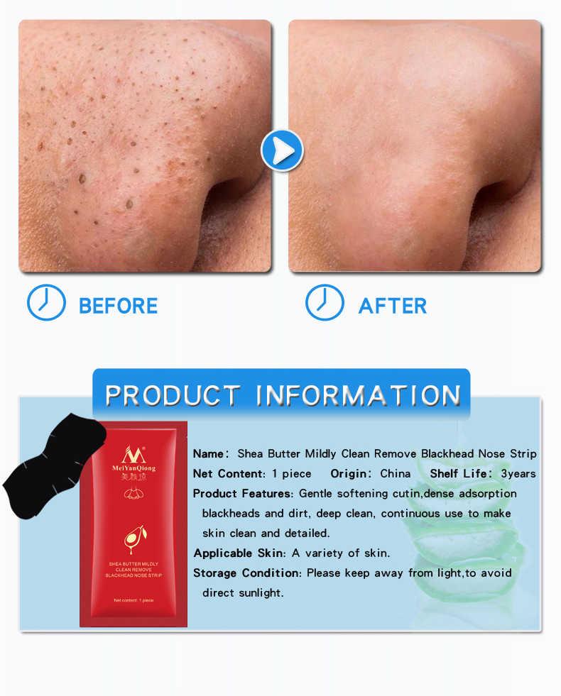 MYQ zaskórnika Remover maska porów maska czarna maska Peeling leczenie trądziku czarna głęboko oczyszczająca pielęgnacja skóry nosa do pielęgnacji skóry TSLM2