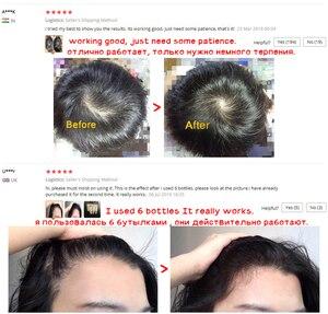 Image 2 - OMY Nữ Chống Rụng Tóc Mọc Tóc Xịt Tinh Dầu Lỏng Dành Cho Nam Nữ Khô Tái Tạo Tóc Sửa Chữa, tóc Sản Phẩm