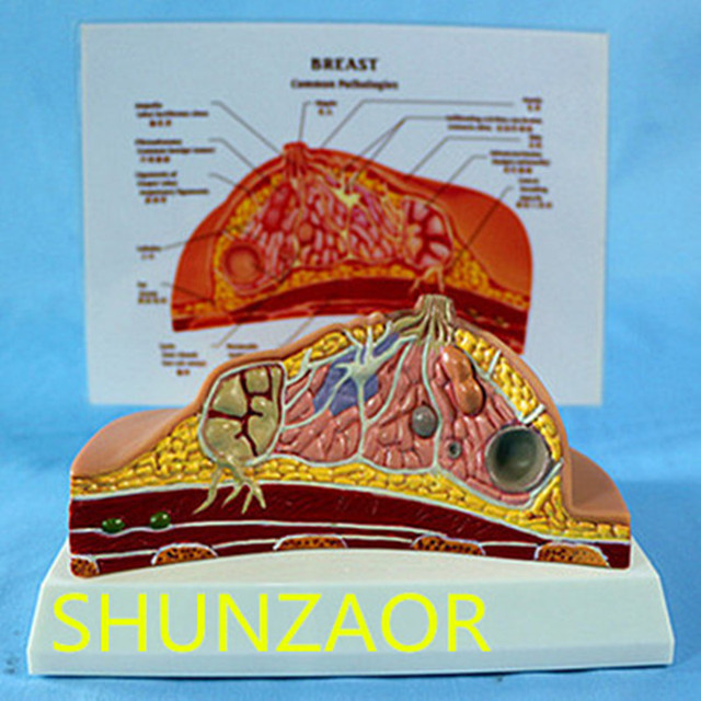 1:1 Median Section of Human Female Breast Pathology Anatomy Model Kit  Table type breast lesion model lactating breasts