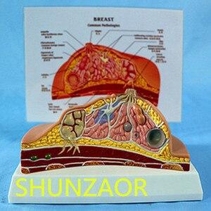 Image 1 - 1:1 متوسط قسم من الإنسان أنثى الثدي علم الأمراض نموذج تشريح عدة الجدول من نوع الثدي آفة نموذج المرضعات الثدي