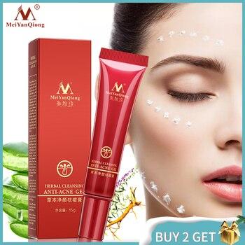 Herbal Acne Treatment Cream Removes Facial Marks Skin Spots Care Shrink Pores Eliminates Oil control Repair