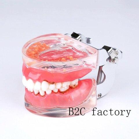 novo modelo de dentes dentais typodon adulto doenca periodontal patologica