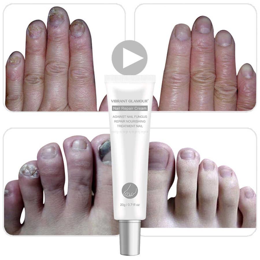 Crema de reparación de uñas GLAMOUR vibrante, tratamiento de hongos en las uñas, eliminación de onicomicosis, crema de reparación de uña del pie Anti hongos 20ML