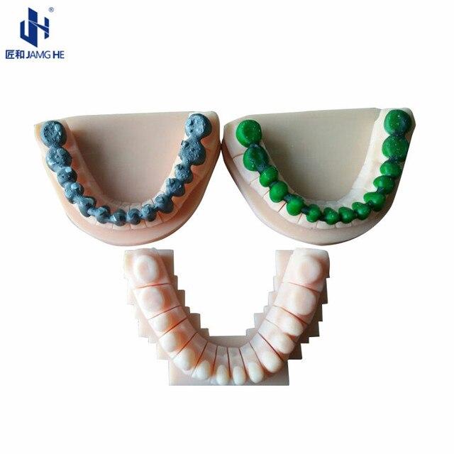Drukarka DLP LCD SLA 3D odlewana żywica do odlewania metali dentystycznych 1000Gram nadaje się do phrozen, elegoo, hunter, formlabs itp.