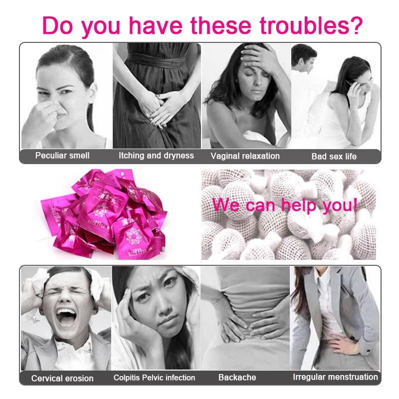tamponok Trichomonas ból