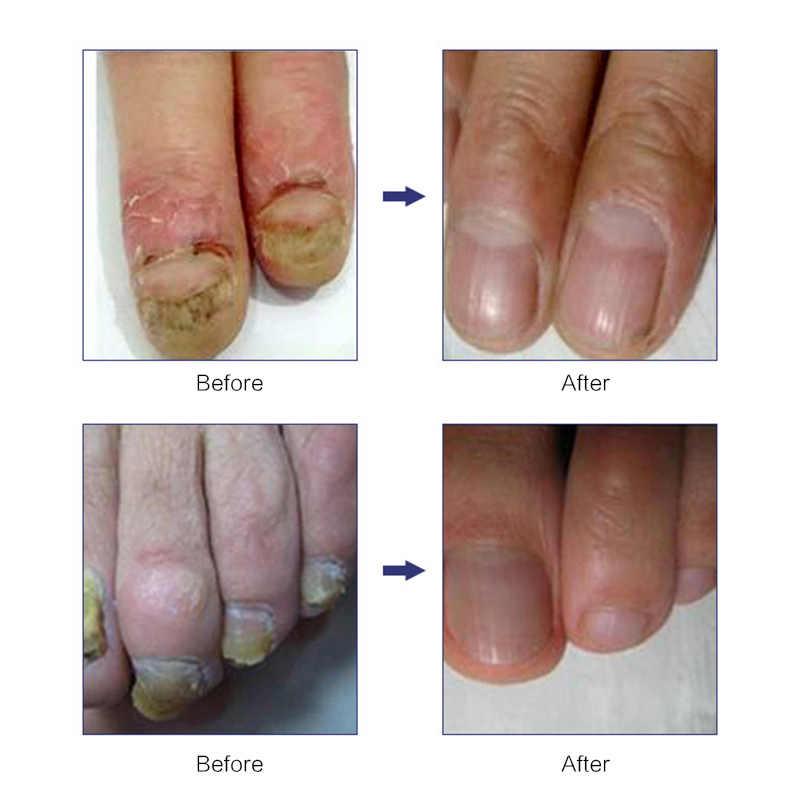 10ML רגל אנטי פטרייה מהות סרום נייל טיפול טיפול מהות נייל רגל להלבין הבוהן מסמר פטרייה הסרת ג 'ל יוניסקס TSLM1