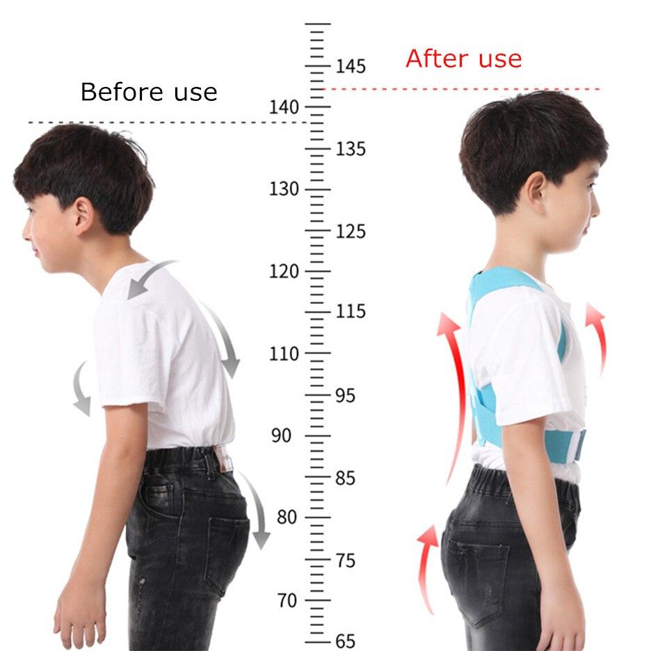 posture corrector for children