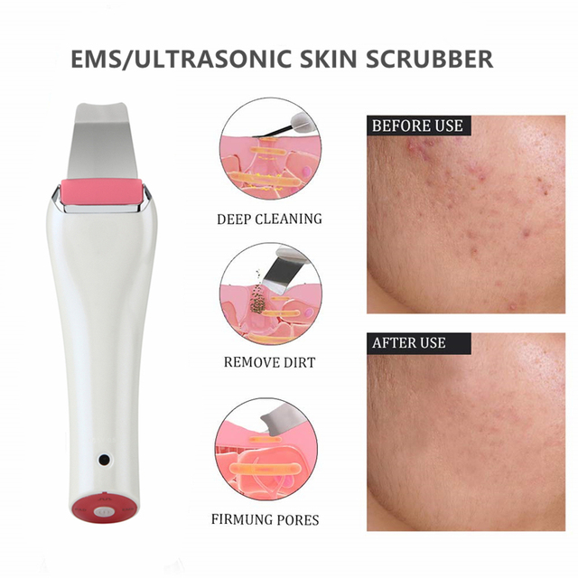 Facial Skin Cleansing Brush Skin Scrubber Blackhead Remover Facial Pores Peeling instrument Comedones Extractor Pimple Cleanser 1