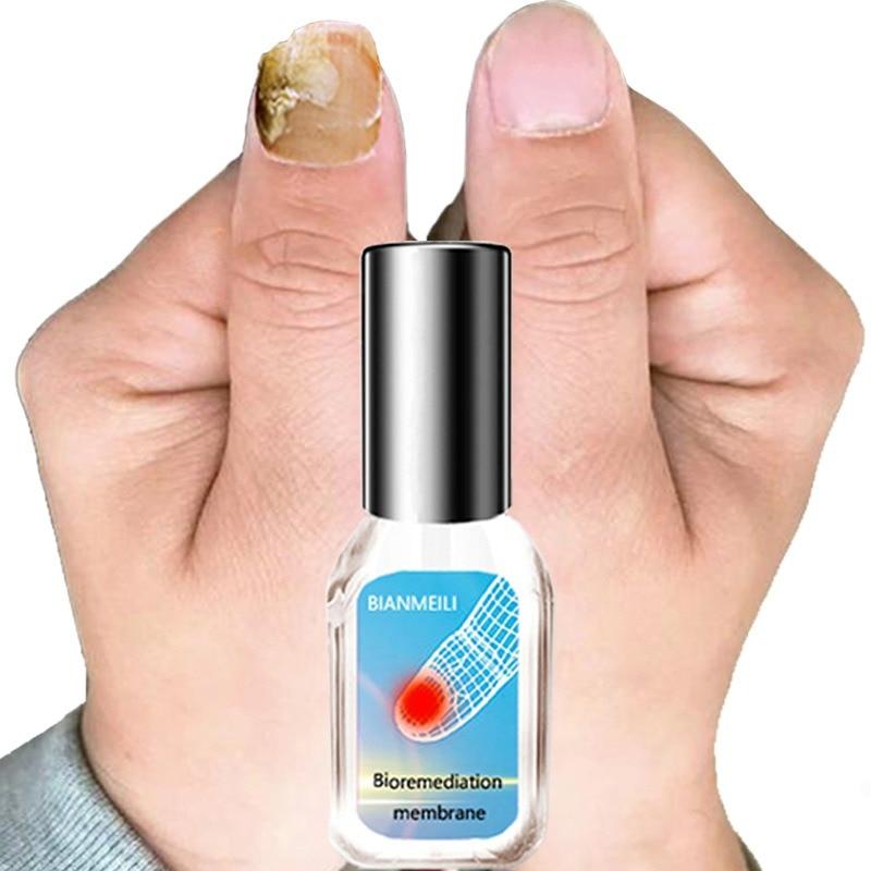Película antibacteriana solución de reparación de infección Anti hongos aceite nutritivo Reparación de uñas tratamiento de hongos pluma para el cuidado de uñas