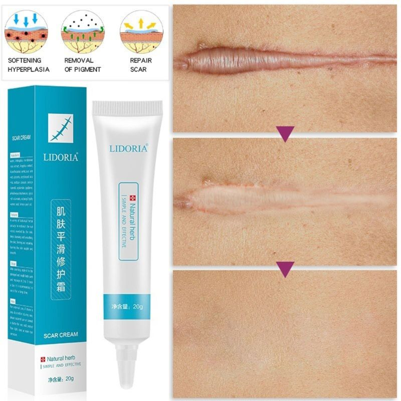 20g Natural Herbal Extract Scar Cream Stretch Marks Remover Skin Repair Facial Acne Spots Treatment Whitening Ointment Q0KD