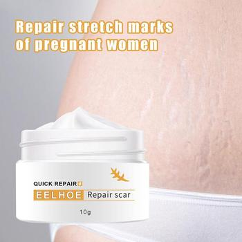 Crocodile Repair Scar Face Cream Removal Acne Spots Whitening Skin for Scald and Surgical Scar Stretch Marks 1