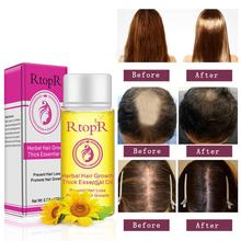 RtopR Herbal Hair Oil Growth Anti Loss Liquid Promote Thick Fast Treatment Care Beauty Essence