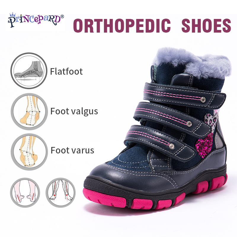 Princepard Winter Orthopedic Boots For Kids 100%  Natural Fur Lining Genuine Leather Upper Shoes For Arch Support  22-36