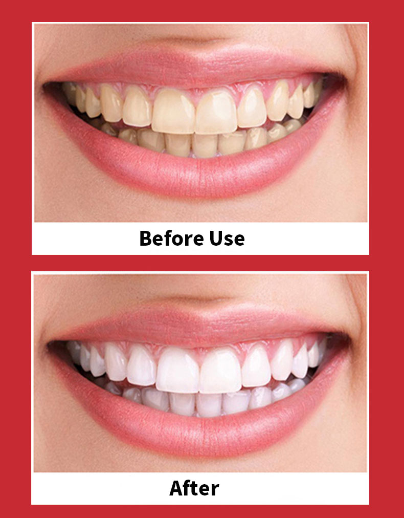 Купить ультра звуковая электрическая зубная щетка usb перезаряжаемая