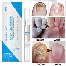 1 pz liquido Anti chiodo unghia fungo penna 3ML trattamento unghie cuticola penna olio soluzione unghie strumento Anti fungo TSLM2